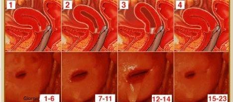Posizione cervice in gravidanza