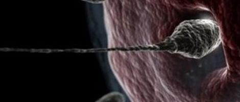 La puntura ovarica, come nell'IVF, è parte del processo della tecnica di fecondazione ZIFT.