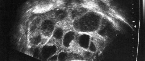 Sindrome da Iperstimolazione Ovarica