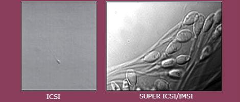 Super ICSI: processo