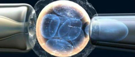 Diagnosi genetica preimpiantazionale