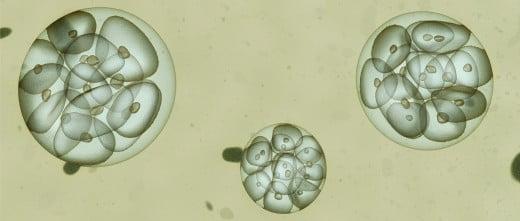 Trasferimento di embrioni